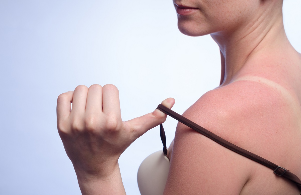 10 Foods That Can Help Prevent Sunburn Of The Skin