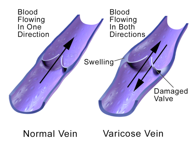 Control your environment when you have Varicose veins